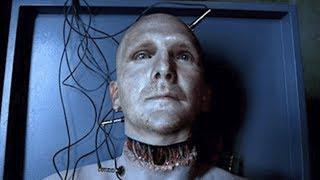 Arzt gelingt Kopftransplantation an einem Menschen!