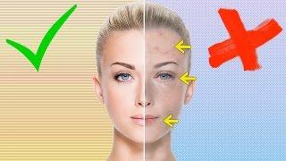 5 Anzeichen für Vitaminmangel - Die man dir sofort ansieht