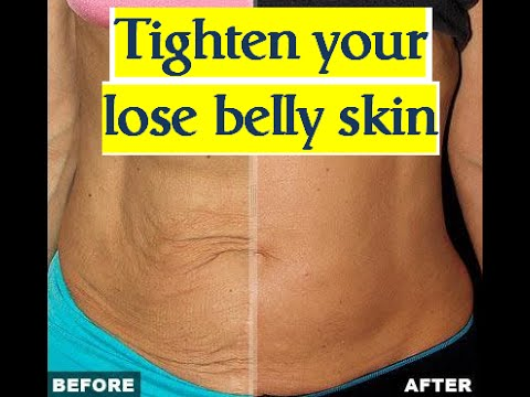 how to get rid of excess belly skin