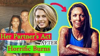 After This Runner Suffered Horrific Third-Degree Burns, Her Partner Said The Most Moving Thing