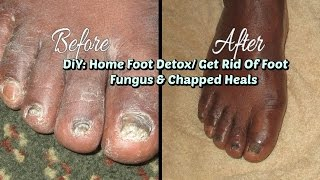 DIY: Home Foot Detox/ How To Get Rid Of Foot Fungus