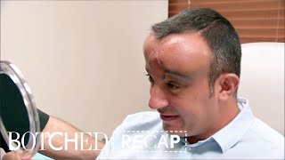 """Botched"" Recap: Season 4, Episode 6 