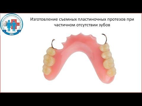 Как изготовить зубной протез