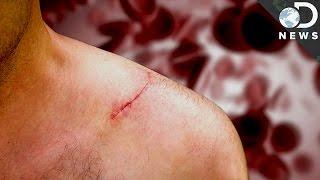 How Do Scars Form?