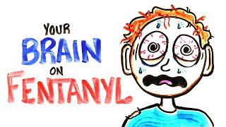 Your Brain On Fentanyl (FIXED)
