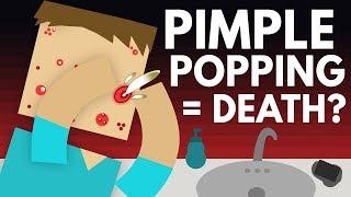 How Dangerous Is Popping Pimples? - Dear Blocko #7