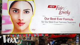 Why the market for skin whitening is growing