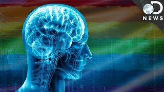 What Does The Transgender Brain Look Like?