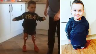 3-Year-Old Amputee Takes First Steps by Himself on Prosthetic Legs