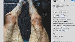 Tour de France: So sehen Beine nach 2829 Kilometern Radfahren aus