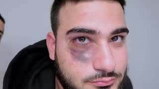 GOT BEAT UP BY HATERS!! *Black Eye*