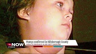 Mumps confirmed in Hillsborough Co.