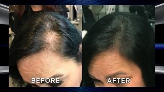Could Microblading Your Scalp Help with Hair Loss?