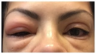 HOW TO REMOVE FALSE EYELASHES (AT HOME)