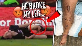 He Broke My Leg At KSI