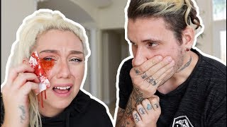 CAT SCRATCHED MY EYE PRANK! ( 911 ALMOST CALLED )