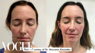One Woman Gets 15 Cosmetic Procedures in 12 Months | Vogue