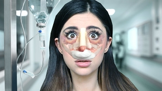 NOSE JOB GONE WRONG - Surgery Simulator