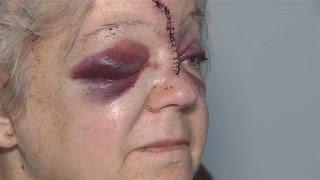 Woman With Cancer Brutally Beaten With Hammer While Trying to Save Co-Worker