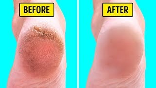 10 Home Remedies to Make Feet Smooth and Silky