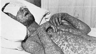 Die Tödlichsten Viren der Welt 😮💀