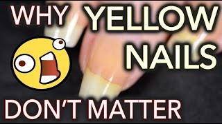 Why yellow nails DON
