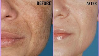 How To Use Raw Papaya To Treat Skin Pigmentation, Dark Spots, Brown Spots Easily at Home