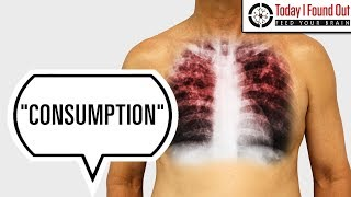 Why Was Tuberculosis Called Consumption?