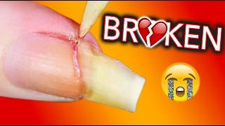 MY LIFE IS OVER I AM BROKEN / Fixing my broken nail