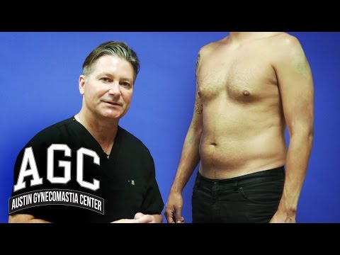 Belly Fat Surgery Cost Fat Loss Video Free