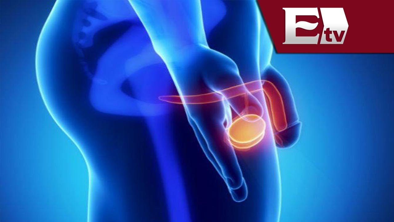 Does sex decrease chances of prostate cancer