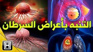 تعرف على اعراض السرطان العامة التي يجب على كل فرد بالغ التنبه بها ومعرفتها