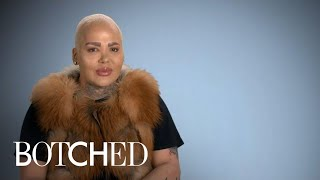 Jordan aka The Lip King Makes His Big Return! | Botched | E!