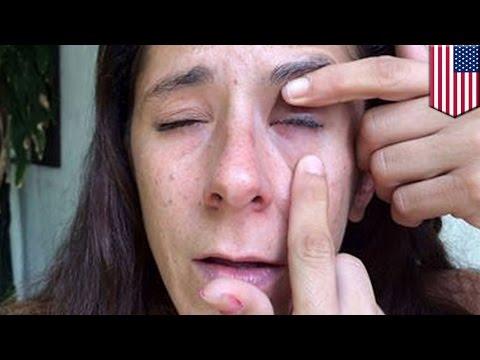 Что делать если залил пальцы суперклеем