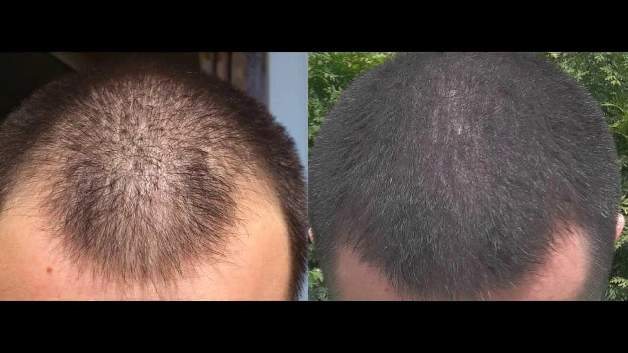 Чеснок для волос  progulshicaru